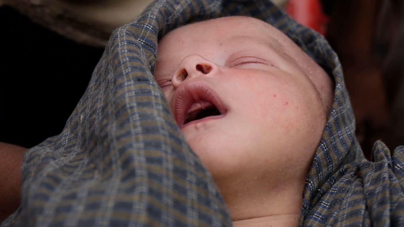 Ce bébé Rohingya de deux jours est désespérément malade