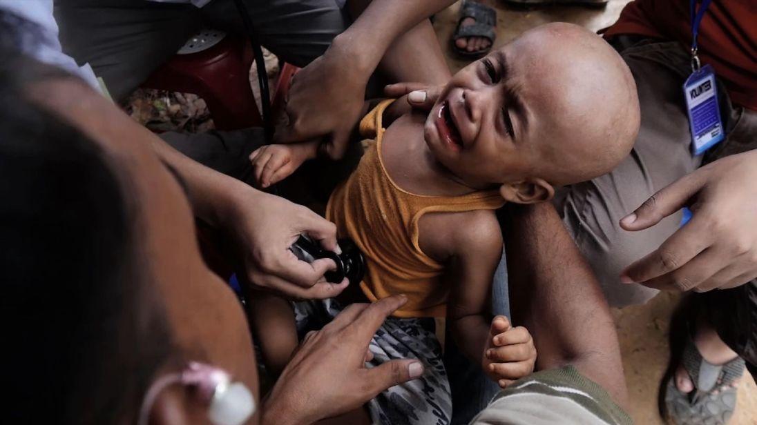 Yaseem souffre de malnutrition et d'une infection du cuir chevelu