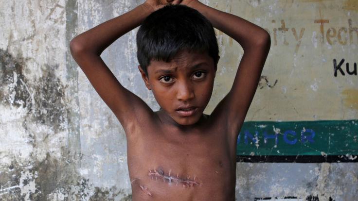Mohammed Shoaib, 7 ans, a été blessé à la poitrine au Myanmar