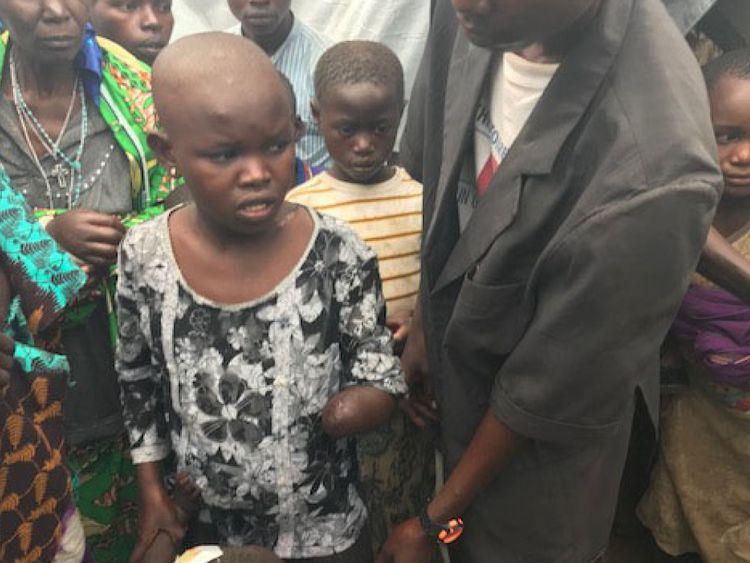 Mave, 11 ans, s'est enfui de deux miliciens mais ils l'ont rattrapé et lui ont troqué la tête et le cou