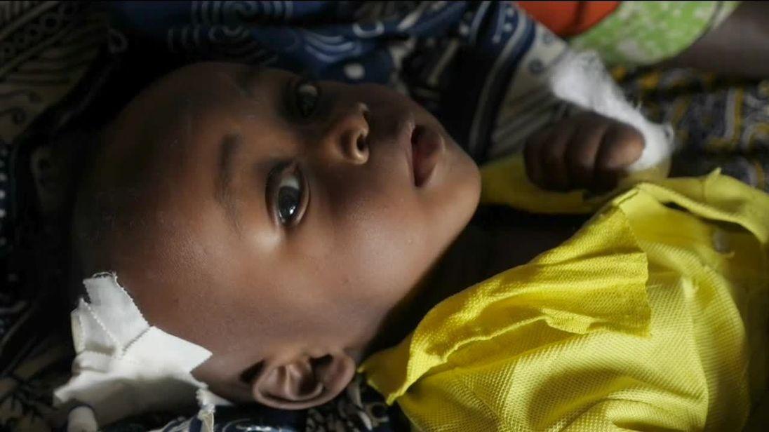 Enfant sévèrement malnutri en République démocratique du Congo