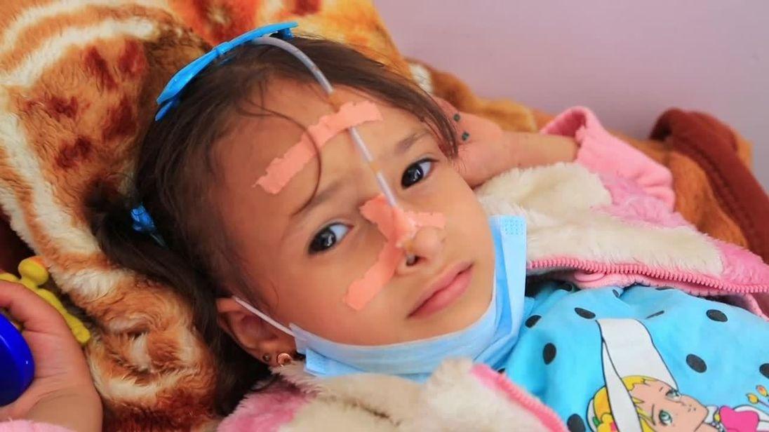 Une fille blessée à l'hôpital au Yémen
