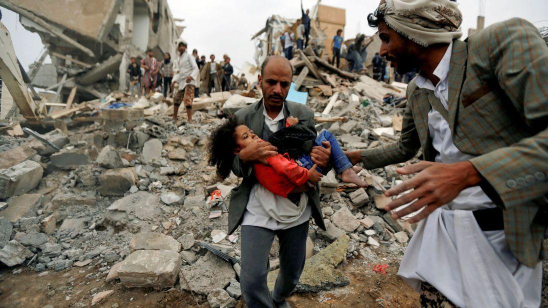 YEMEN-SECURITY / AIRSTRIKERTX3DFFQ26 août 2017Sanaa, YémenButhaina Muhammad Mansour, soupçonnée d'avoir quatre ou cinq ans, est assise sur un lit dans un hôpital après avoir survécu à un frappe aérienne qui a tué huit membres de sa famille à Sanaa. REUTERS / Khaled Abdullah