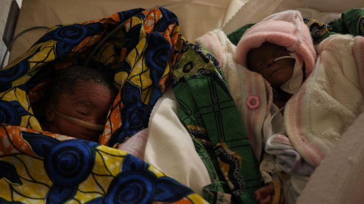 Les deux nouveau-nés se battent pour leur vie