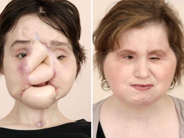 Mme Stubblefield a subi plusieurs chirurgies avant sa transplantation Pic: Clinique de Cleveland