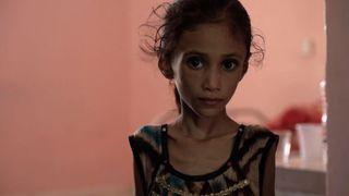 "Anissa Abdulmoniem souffre de malnutrition sévère ""srcset ="" https://e3.365dm.com/18/10/320x180/skynews-yemen-anissa-abdulmoniem_4452294.jpg?20181013171645 320w, https://e3.365dm.com/ 18/10 / 640x380 / skynews-yemen-anissa-abdulmoniem_4452294.jpg? 20181013171645 640w, https://e3.365dm.com/18/10/2014303030303030303030303030303030303030303030303030303030303030303030303030303030303030303030303030303030303030404040/30/30/30/40/340x380 / skynews-yemen-anissa-abdulmoniem_4452294.jpg? //e3.365dm.com/18/10/992x558/skynews-yemen-anissa-abdulmoniem_4452294.jpg?20181013171645 992w, https://e3.365dm.com/18/10/1096x616/skynews-yemen-anemen-and-danslanconsi .jpg? 20181013171645 1096w, https://e3.365dm.com/18/10/1600x900/skynews-yemen-anissa-abdulmoniem_4452294.jpg?20181013171645 1600w, https://e3.365dm.com/18/101920x1080 /skynews-yemen-anissa-abdulmoniem_4452294.jpg?20181013171645 1920w, https://e3.365dm.com/18/10/2048x1152/skynews-yemen-anissa-abdulmoniem_4452294.jpg?2019 de l'article de presse : 900px) 992px, 100vw"