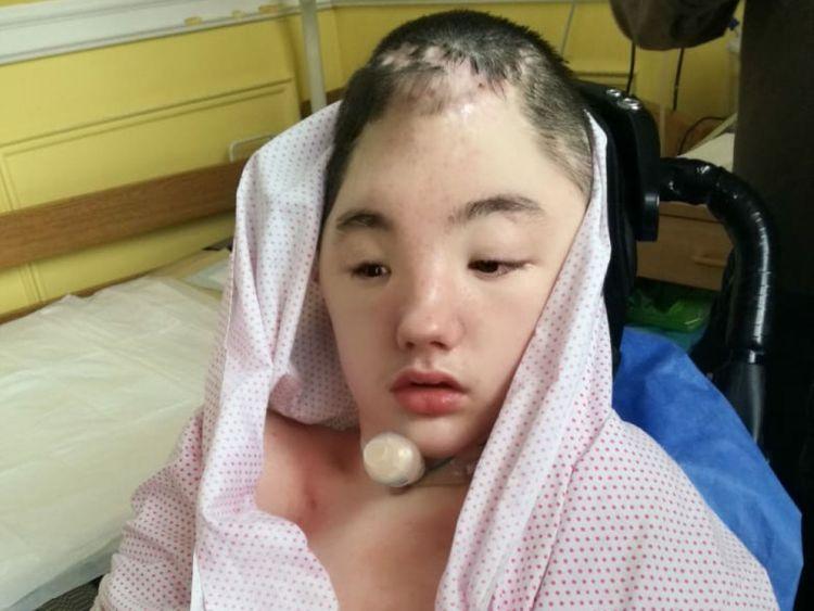 Vanya a subi une grave lésion cérébrale