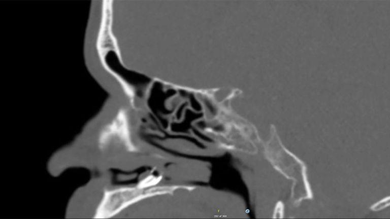 Scanner réalisé par les médecins avant l'extraction. Pic: Rapports de cas BMJ