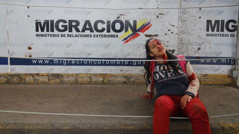Une femme est blessée au milieu des tensions sur le pont Simon Bolivar, à la frontière entre la Colombie et le Venezuela.