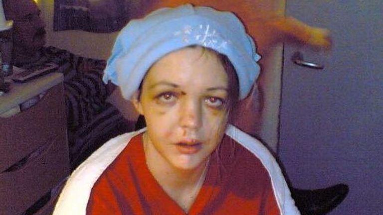 Gráinne après l'accident de 2006. Photo: Gráinne Kealy
