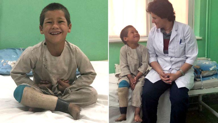 Un garçon afghan avec une jambe prothétique avec la kinésithérapeute Mulkara Rahimi