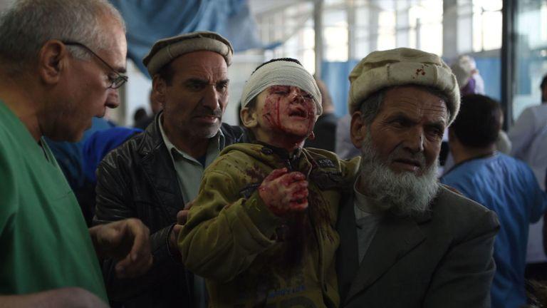Un Afghan qui tient un enfant blessé après l'explosion d'une voiture piégée à Kaboul