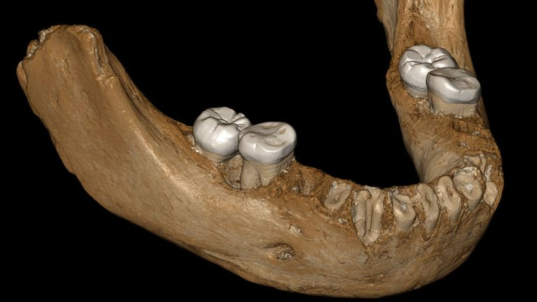 Une reconstruction virtuelle de la mâchoire de Denisovan