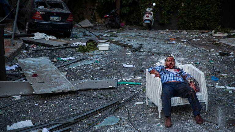 BEYROUTH, LIBAN - 04 AOÛT: Un homme blessé repose sur une chaise après une grande explosion le 4 août 2020 à Beyrouth, au Liban.  Une vidéo partagée sur les réseaux sociaux a montré un incendie de structure près du port de Beyrouth suivi d'une deuxième explosion massive, qui a endommagé les bâtiments environnants et blessé des centaines de personnes.  (Photo par Daniel Carde / Getty Images)