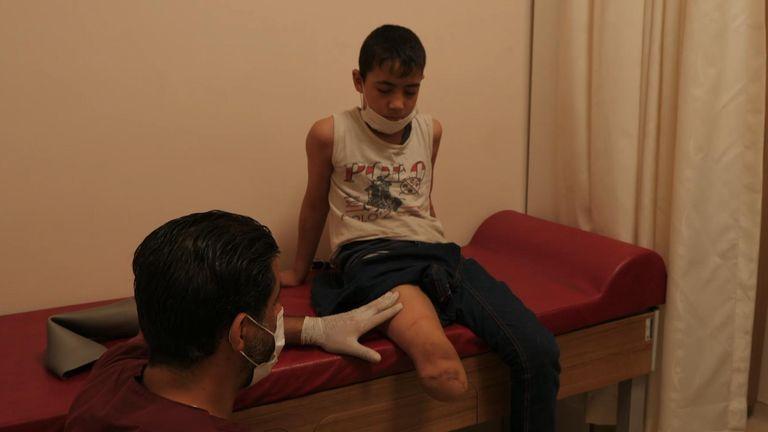 Abdul Rahman, neuf ans, a une jambe prothétique