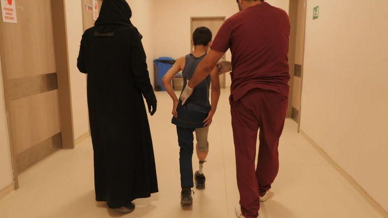 Abdul Rahman a maintenant une jambe prothétique