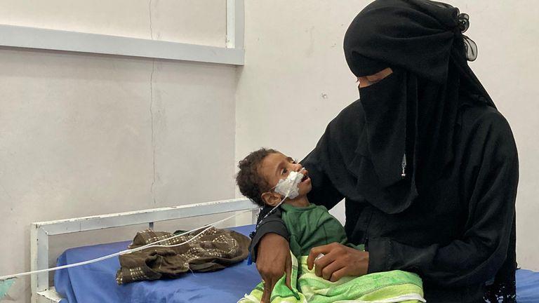 La malnutrition fait paraître Zaid Mohammed plus âgé que ses deux ans