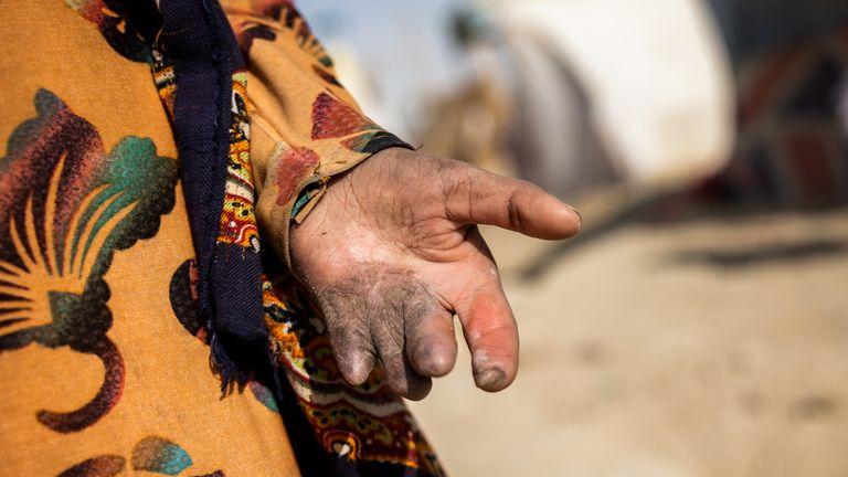 La main de Shogofa a été blessée lorsqu'une roquette a frappé sa maison.  Pic: Jim Huylebroek / Save The Children